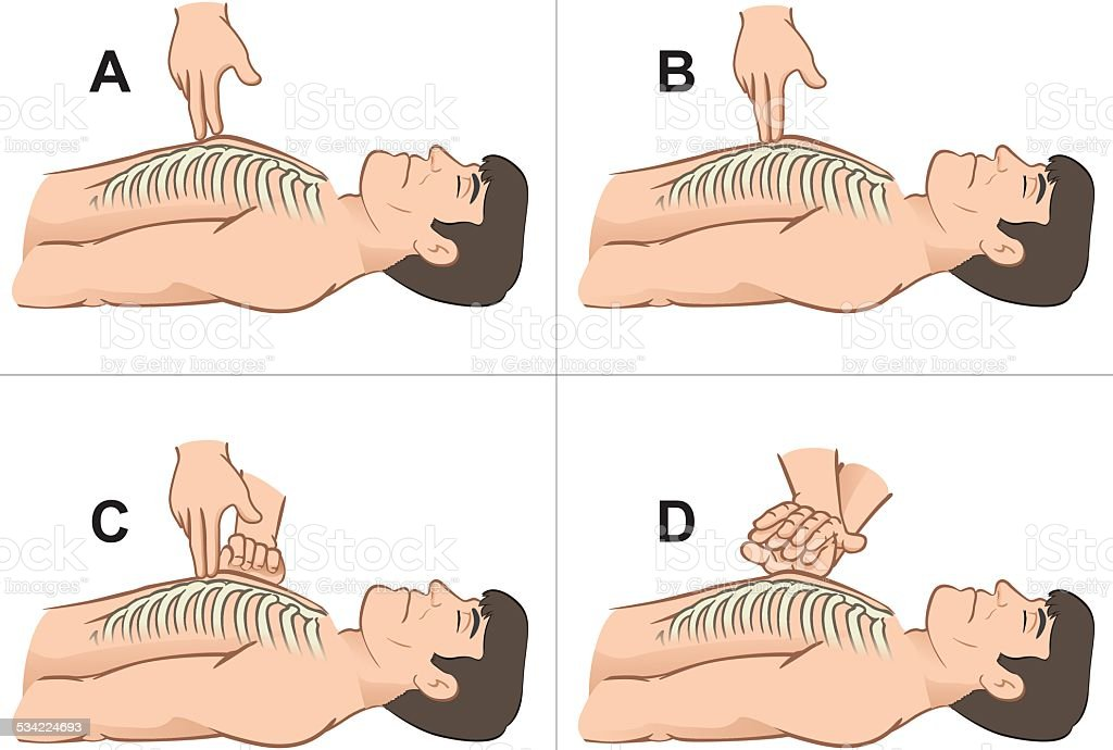 First Aid resuscitation , massage compression of the rib cage chest...