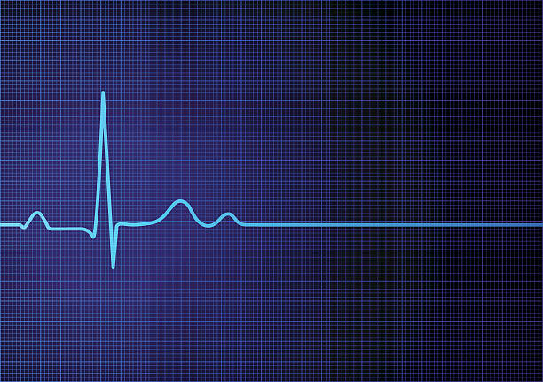 Flat line EKG Vector illustration of EKG screen with a flatline heart rate. pulse trace stock illustrations