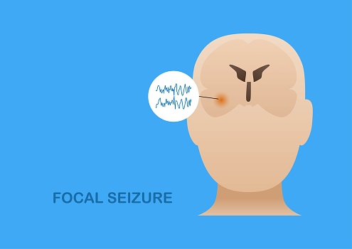 Focal seizure from temporal lobe