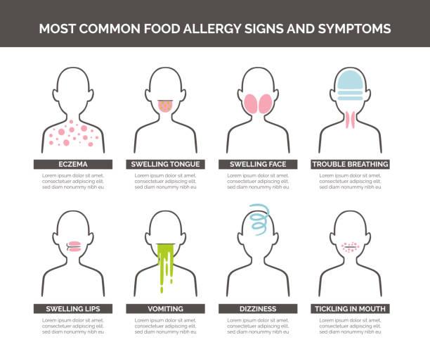 ilustraciones, imágenes clip art, dibujos animados e iconos de stock de los síntomas y signos de alergia de alimentos - alergias alimentarias