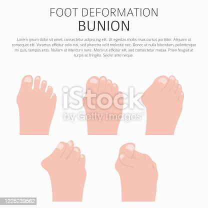 istock Foot deformation as medical desease infographic. Causes of bunion 1225239562
