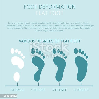istock Foot deformation as medical desease infographic. Causes of Flat foot 1265546662