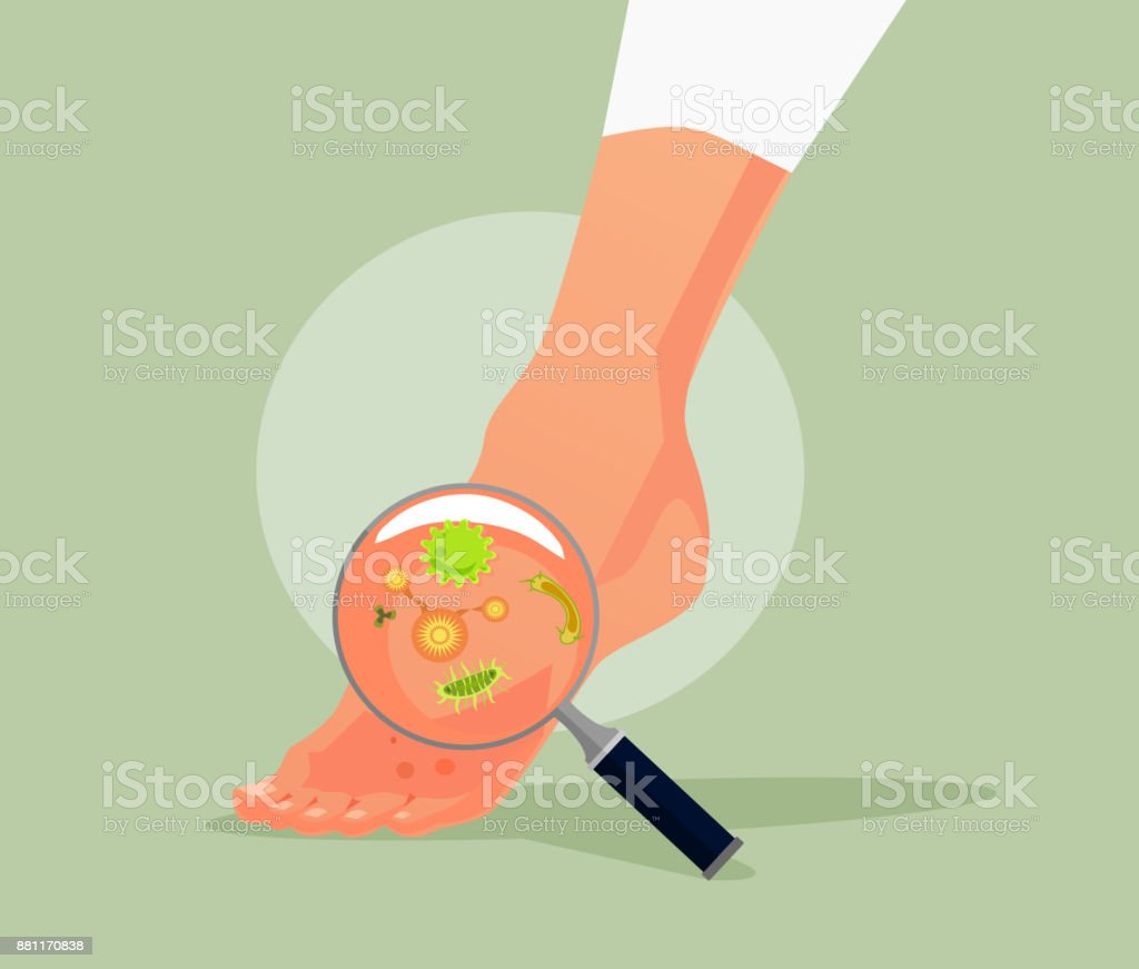 Foot fungus vector art illustration