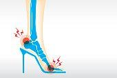 Foot pain by wearing high heels.