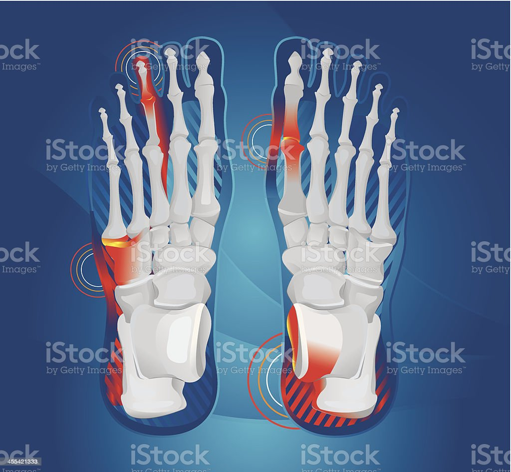 Foot pain royalty-free stock vector art