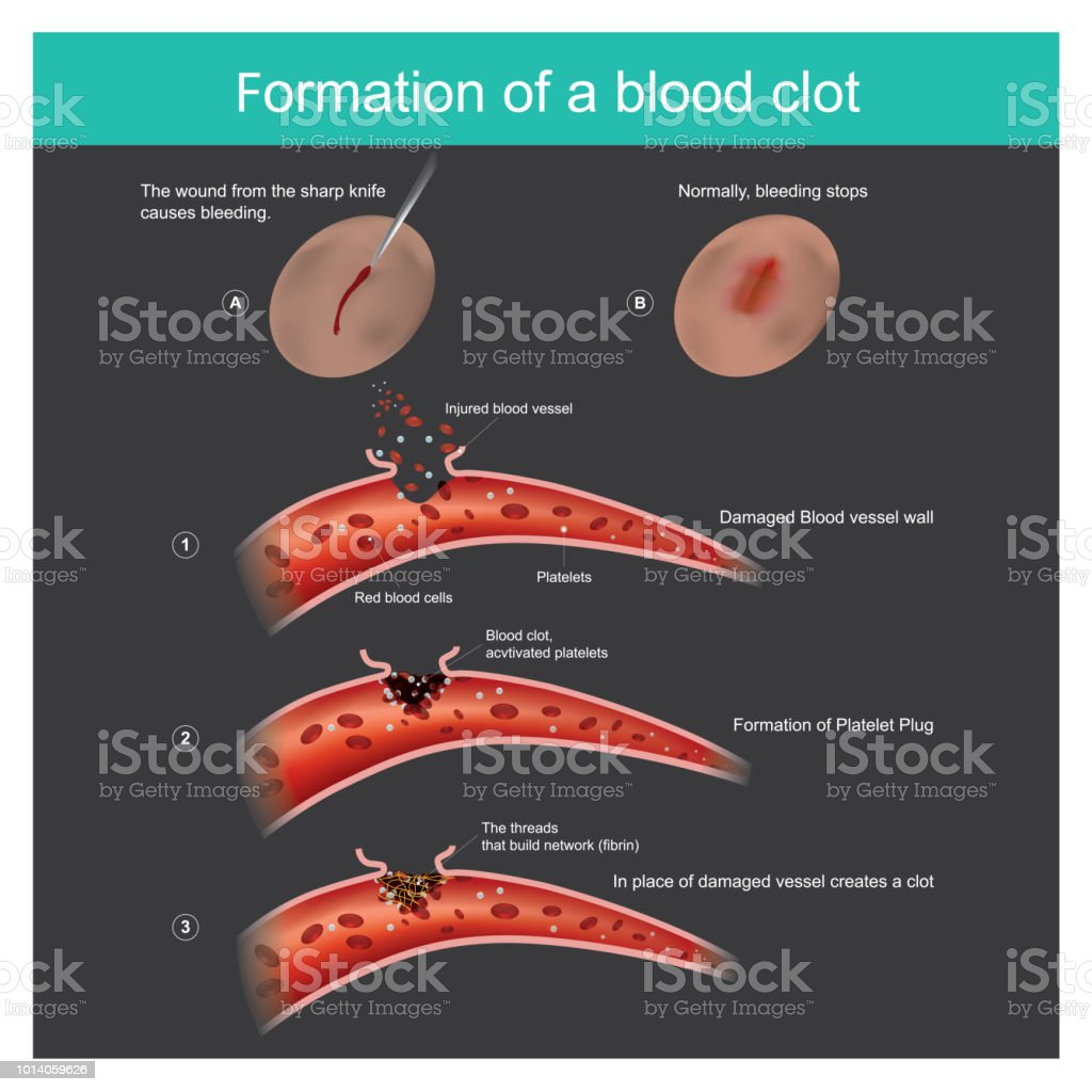 Formation of a blood clot. The wound from the sharp knife on skin Slightly bleeding, The body can respond to stop blood out flow from the capillaries, And anti-bacterial through the body. vector art illustration