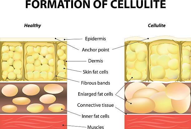 ilustrações, clipart, desenhos animados e ícones de formação de celulite - tratamentos de beleza
