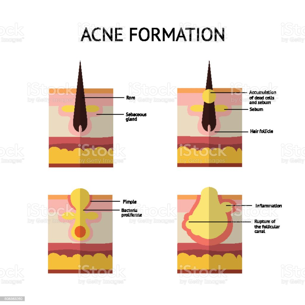 Formation Of Skin Acne Or Pimple Stock Vector Art & More Images of ...