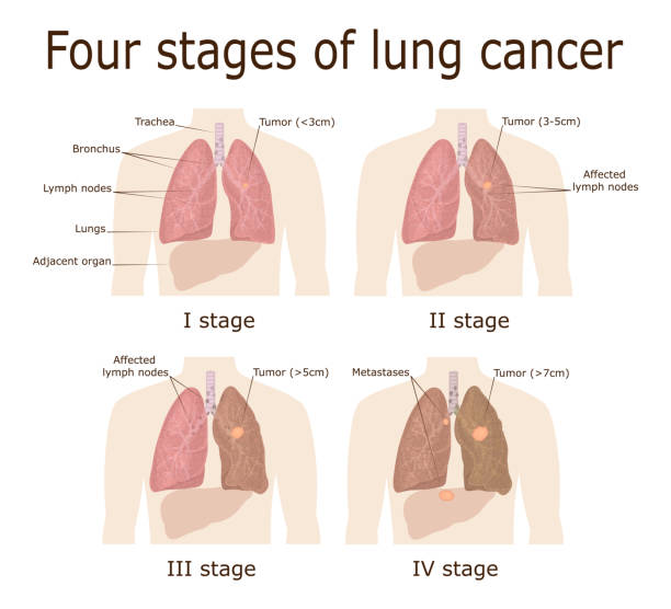 Four stages of lung cancer Illustration of the four stages of oncological disease - lung cancer metastasis stock illustrations