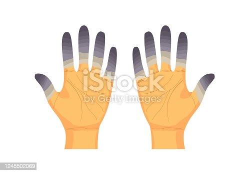 Frostbite fingers vector illustration on white background. Hand damaged in winter season.