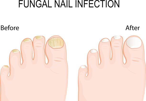 fungal nail infection. Before and after Renewal Treatment. vector art illustration