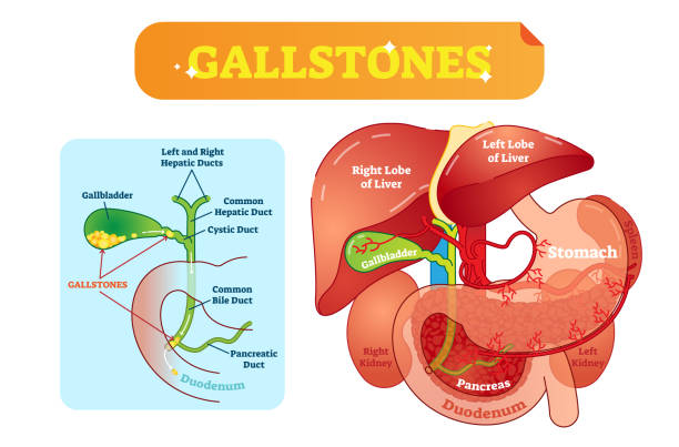 Gallstones anatomical cross section vector illustration diagram with abdominal cavity and gallbladder, bile ducts and duodenum. Gallstones anatomical cross section vector illustration diagram with abdominal cavity and gallbladder, bile ducts and duodenum. Labeled medical information poster. bile stock illustrations