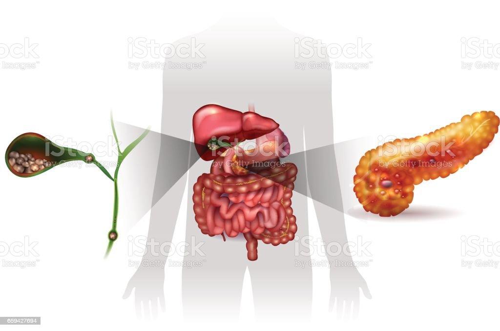Gallstones and acute pancreatitis vector art illustration