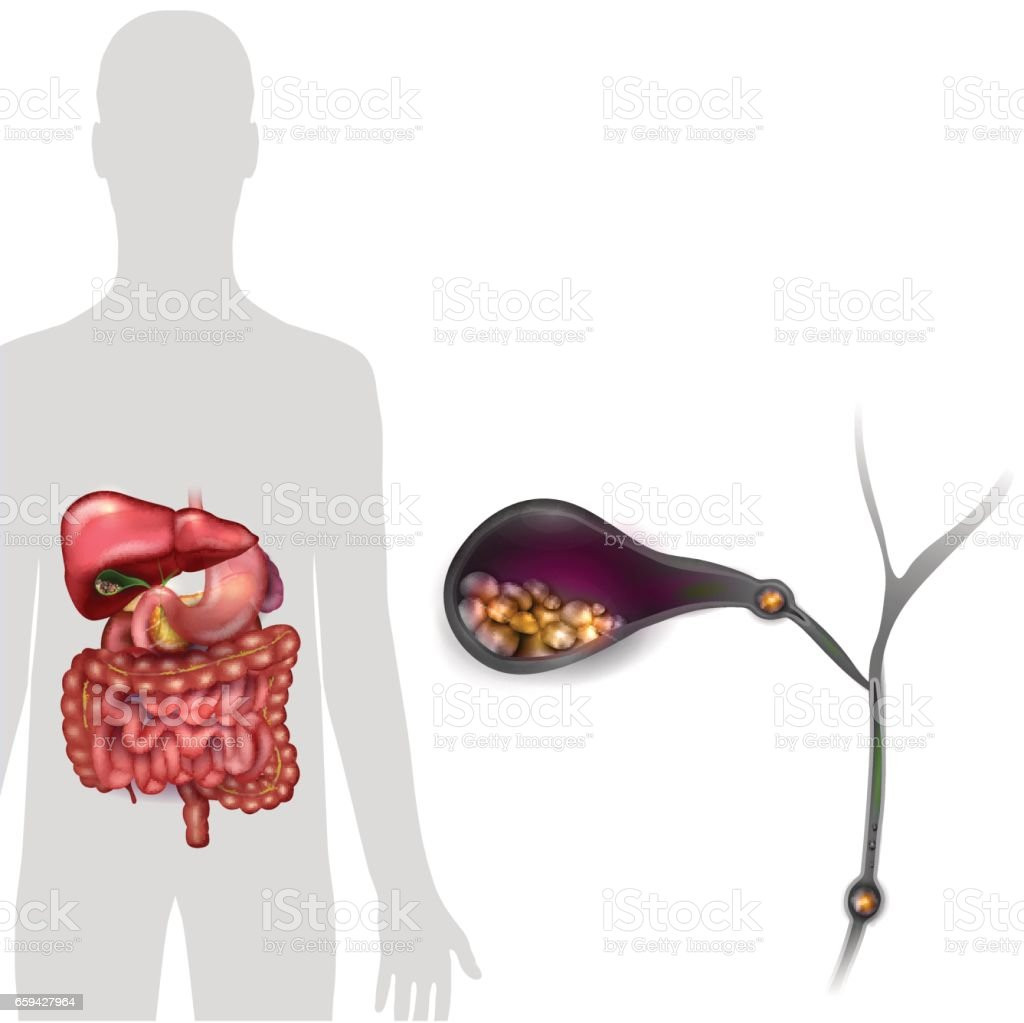 Gallstones in the Gallbladder vector art illustration