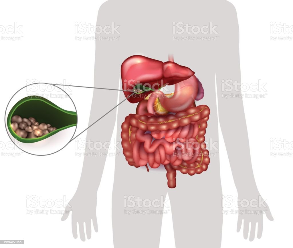 Gallstones In The Gallbladder Stock Vector Art & More Images of ...