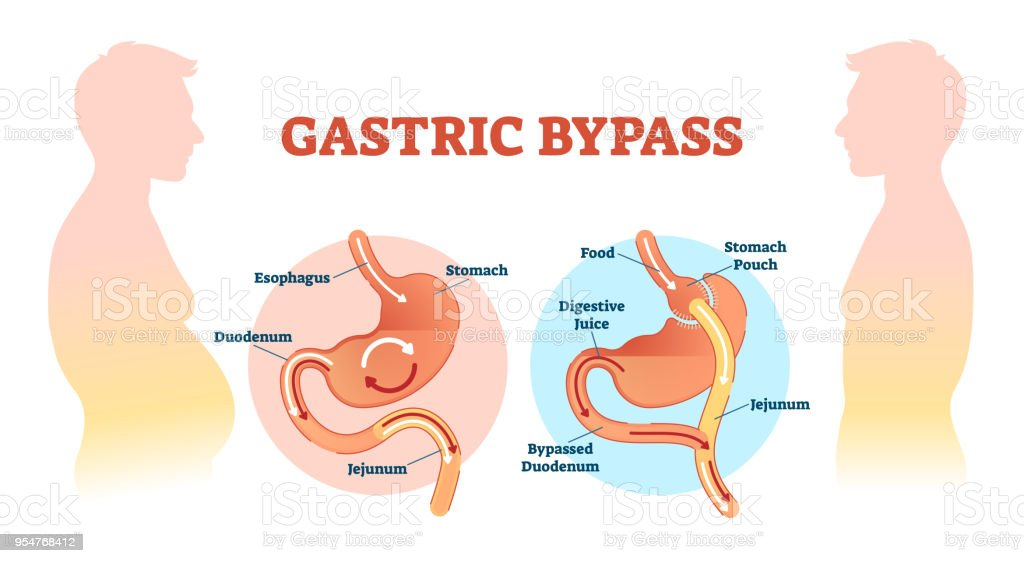 Gastric bypass medical surgery procedure vector illustration with gastric bypass medical surgery procedure vector illustration with esophagus stomach duodenum and jejunum flow ccuart Gallery
