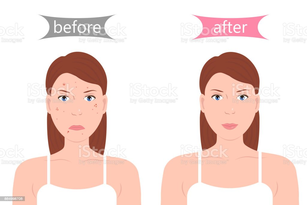 Girl with Acne Before and After vector art illustration
