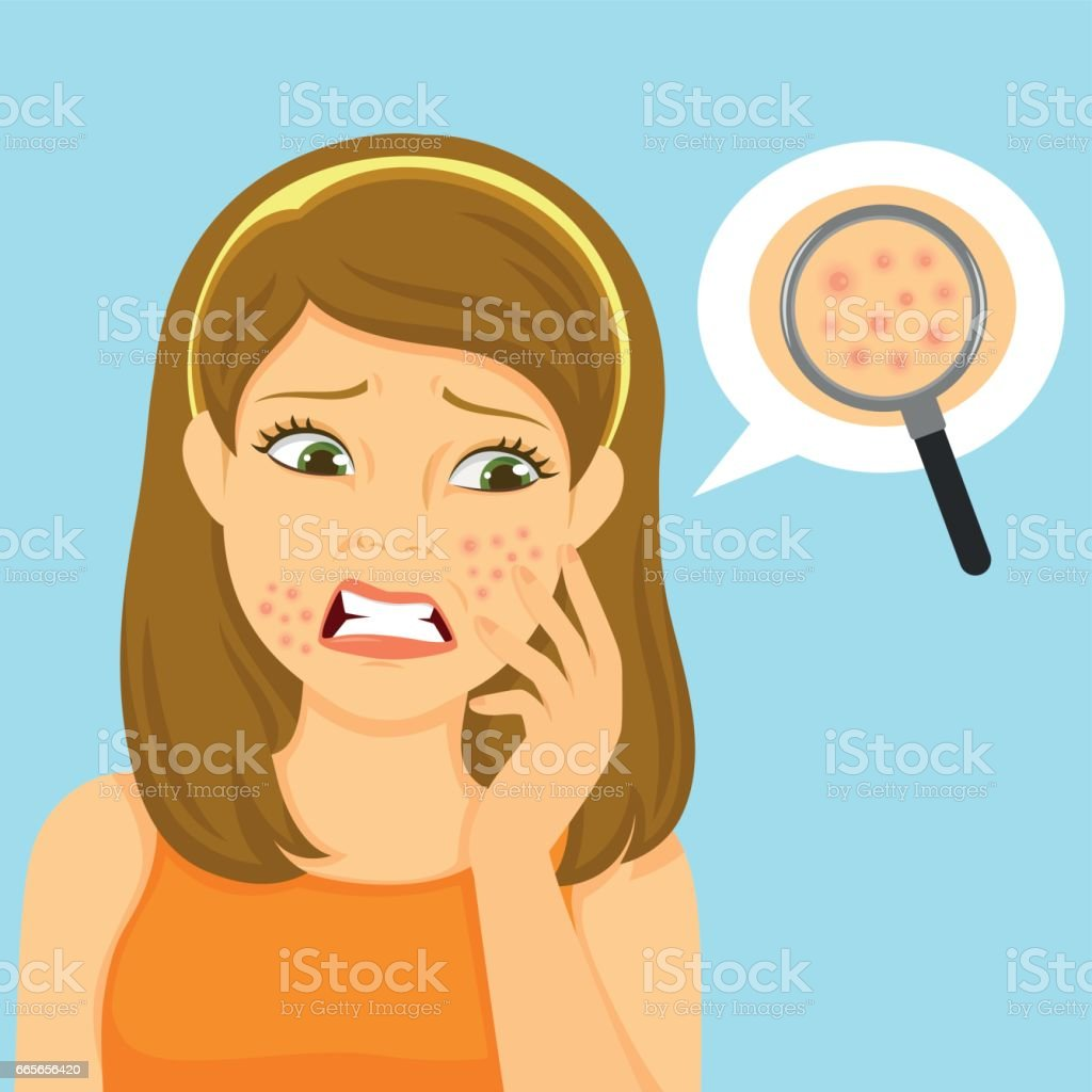 girl with acne vector art illustration
