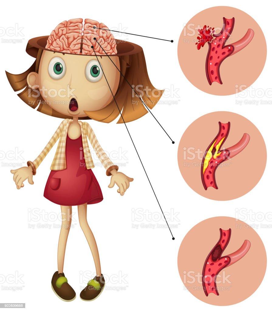 Chica Con El Diagrama De Movimientos Del Cerebro - Arte vectorial de ...