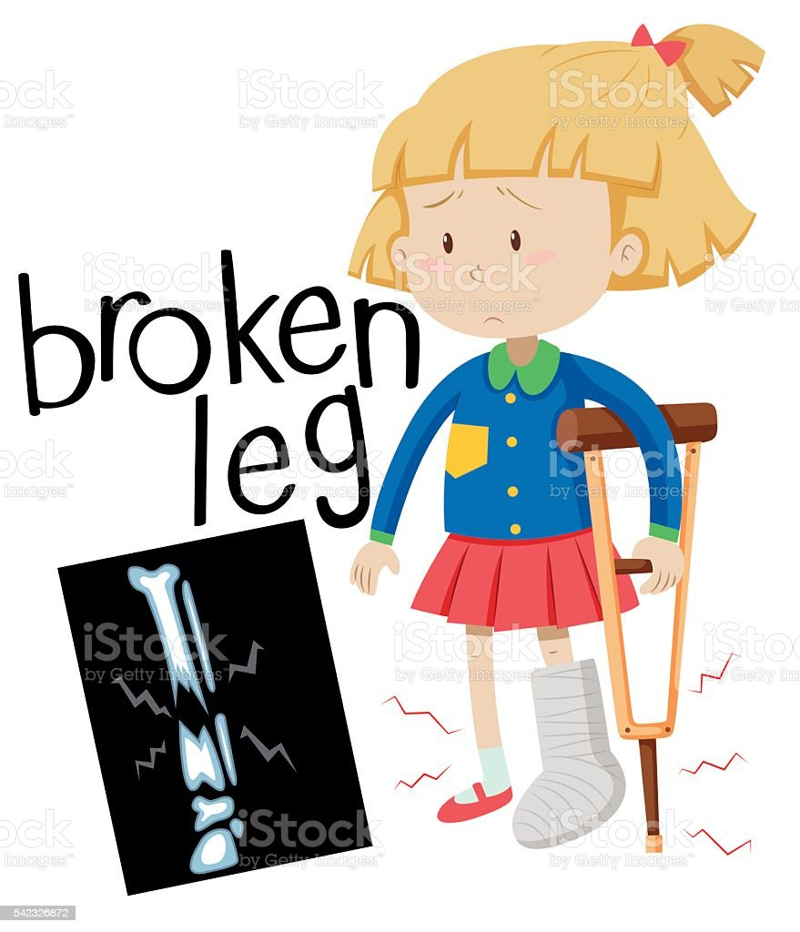 girl with broken leg and xray film stock vector art more images rh istockphoto com x ray machine clipart x ray fish clipart