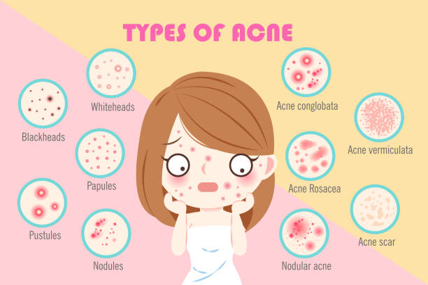girl with types of acne vector art illustration