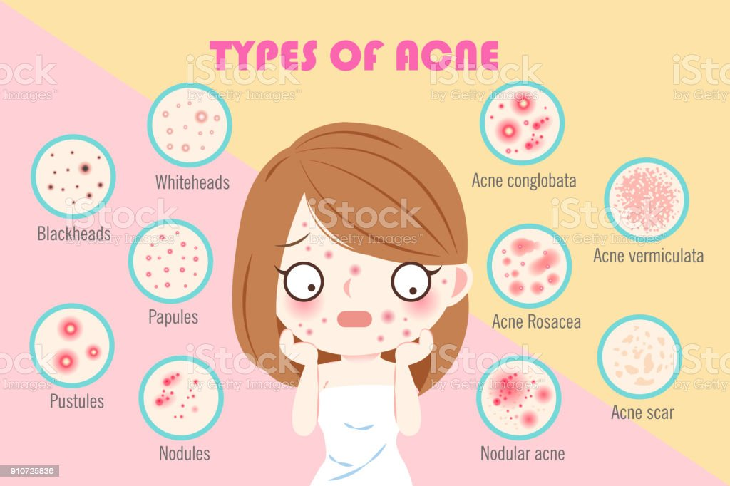 Royalty Free Acne Cartoon Clip Art  Vector Images  U0026 Illustrations