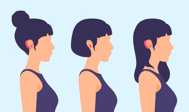 耳朵上有助聽器的女孩。側視圖,人員的個人資料。 - hearing aid 幅插畫檔、美工圖案、卡通及圖標
