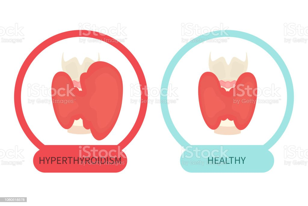 Gland with healthy thyroid and hyperthyroid disorder векторная иллюстрация