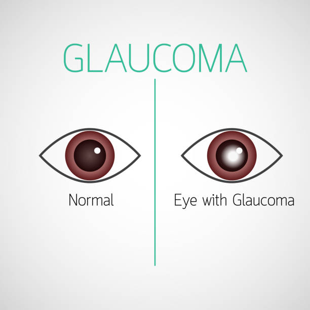 Glaucoma vector icon illustration vector art illustration