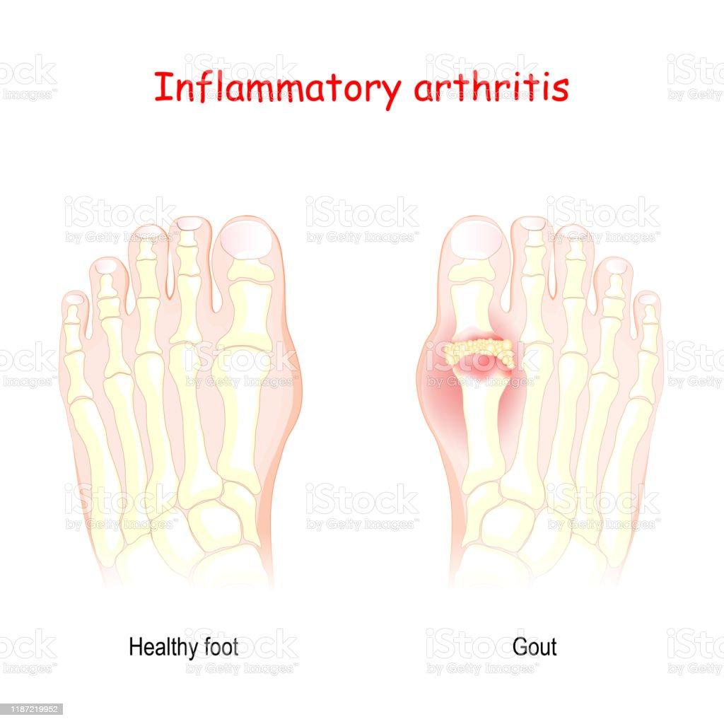 Gout Inflammatory Arthritis Stock Illustration Download Image Now Istock