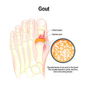 Gout is a form of inflammatory arthritis.