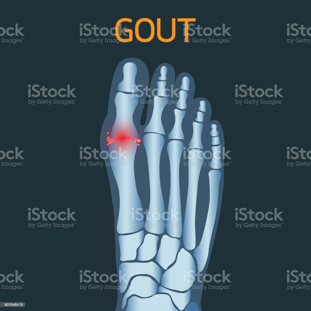 Gout vector icon icon illustration vector art illustration