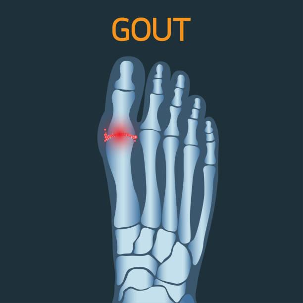 Gout vector icon icon illustration vector art illustration