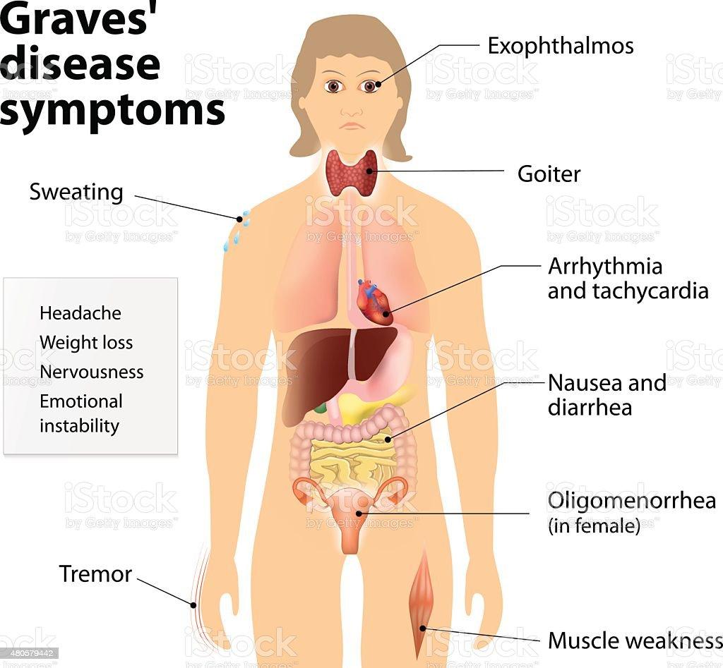 Graves' disease or Basedow disease. Symptoms and signs vector art illustration