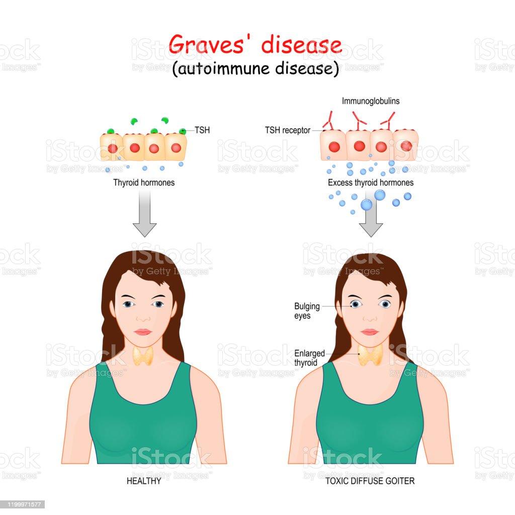 Graves Disease Toxic Diffuse Goiter Is An Autoimmune Disease That
