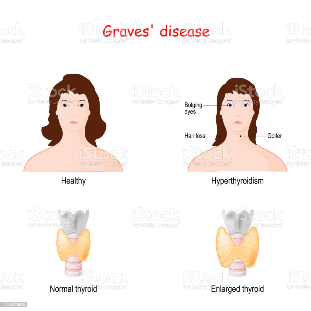 Graves Disease Toxic Diffuse Goiter Stock Illustration Download