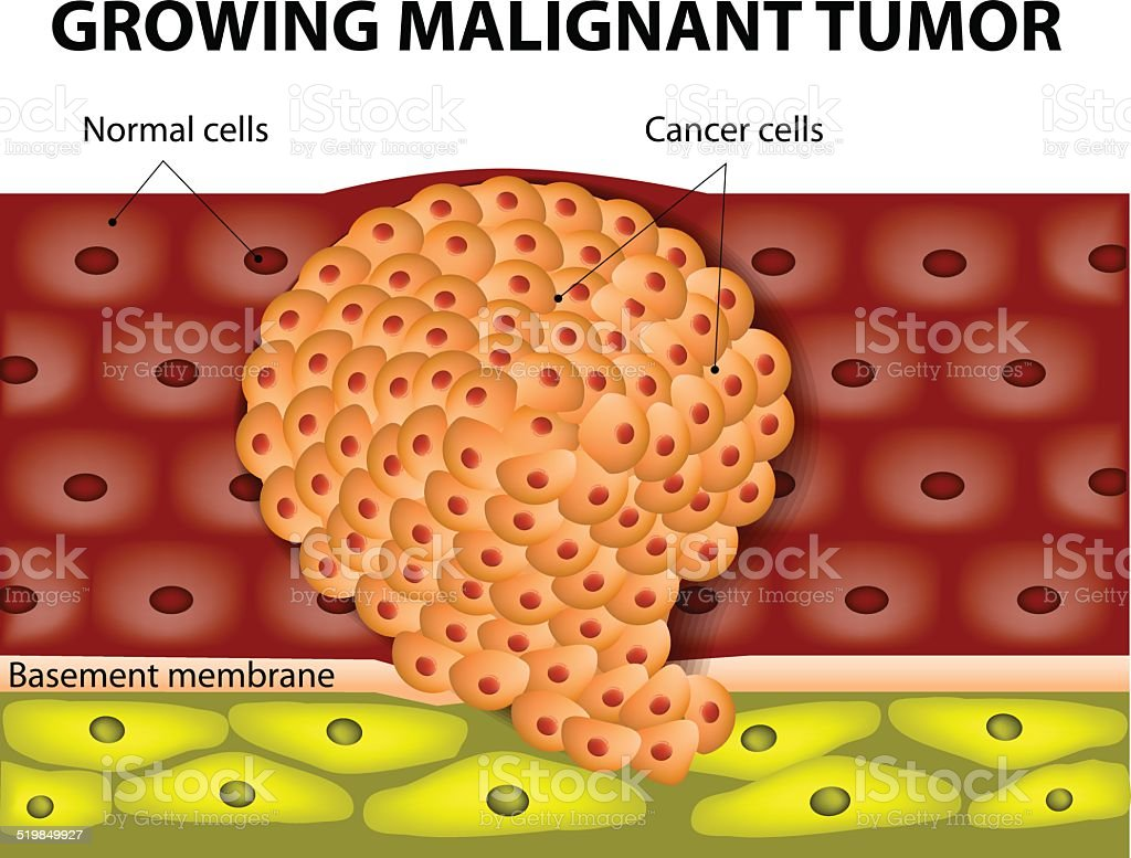 Ilustración de Creciente Tumor Maligno y más banco de imágenes de ...