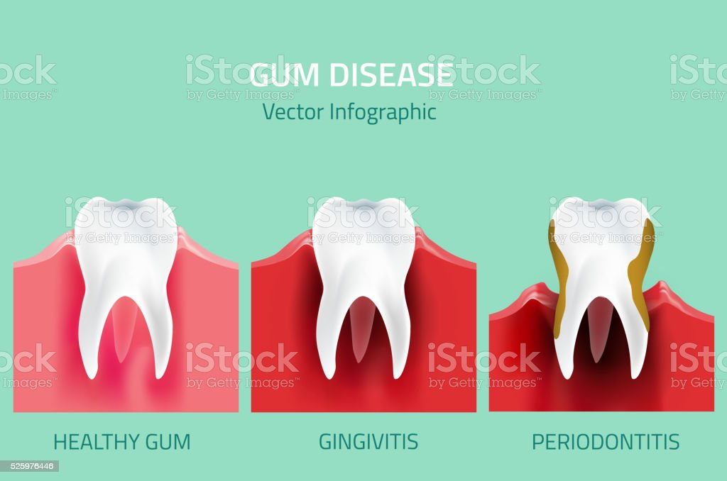 Gum disease stages. Teeth infographic vector art illustration