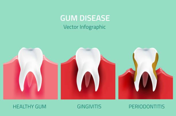 stockillustraties, clipart, cartoons en iconen met gum disease stages. teeth infographic - dentine