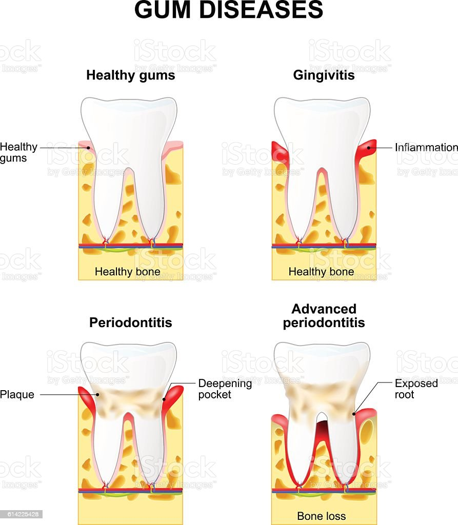Gum disease vector art illustration