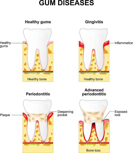 stockillustraties, clipart, cartoons en iconen met gum disease - tandvleesontsteking