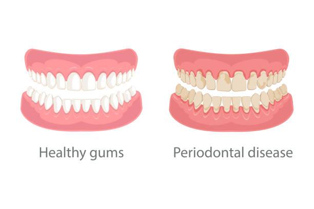 stockillustraties, clipart, cartoons en iconen met kauwgom behandeling, tandvlees ziekte - dentine