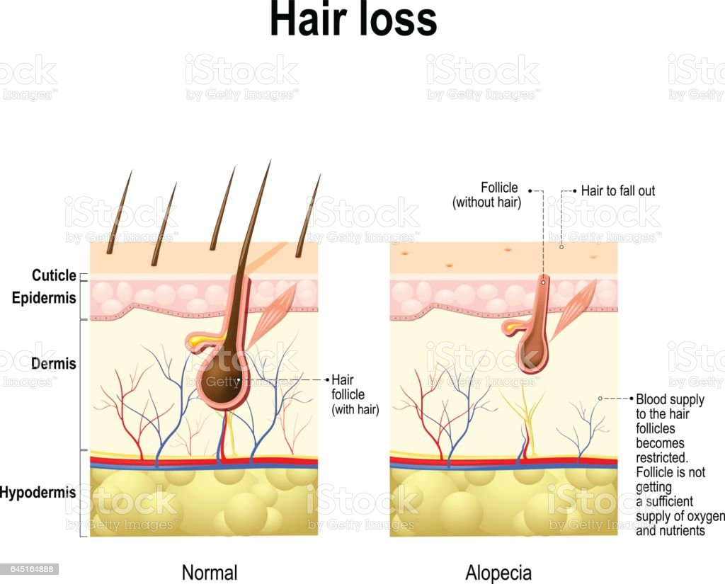 Alopecia Hair Follicle Diagram - Circuit Connection Diagram •