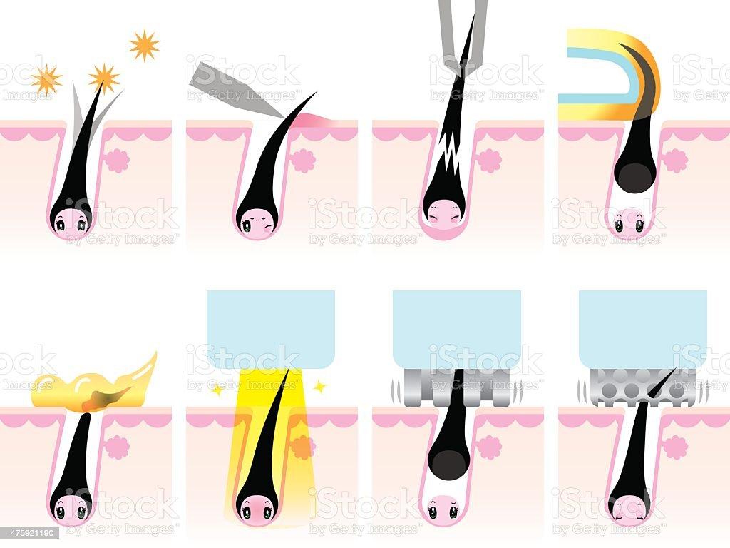 Hair loss anthropomorphic vector art illustration