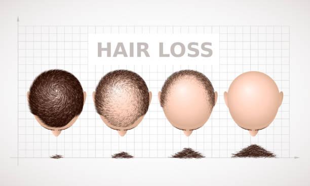 stockillustraties, clipart, cartoons en iconen met haaruitval. grafiek van de vier stadia van alopecia - kaal geschoren hoofd