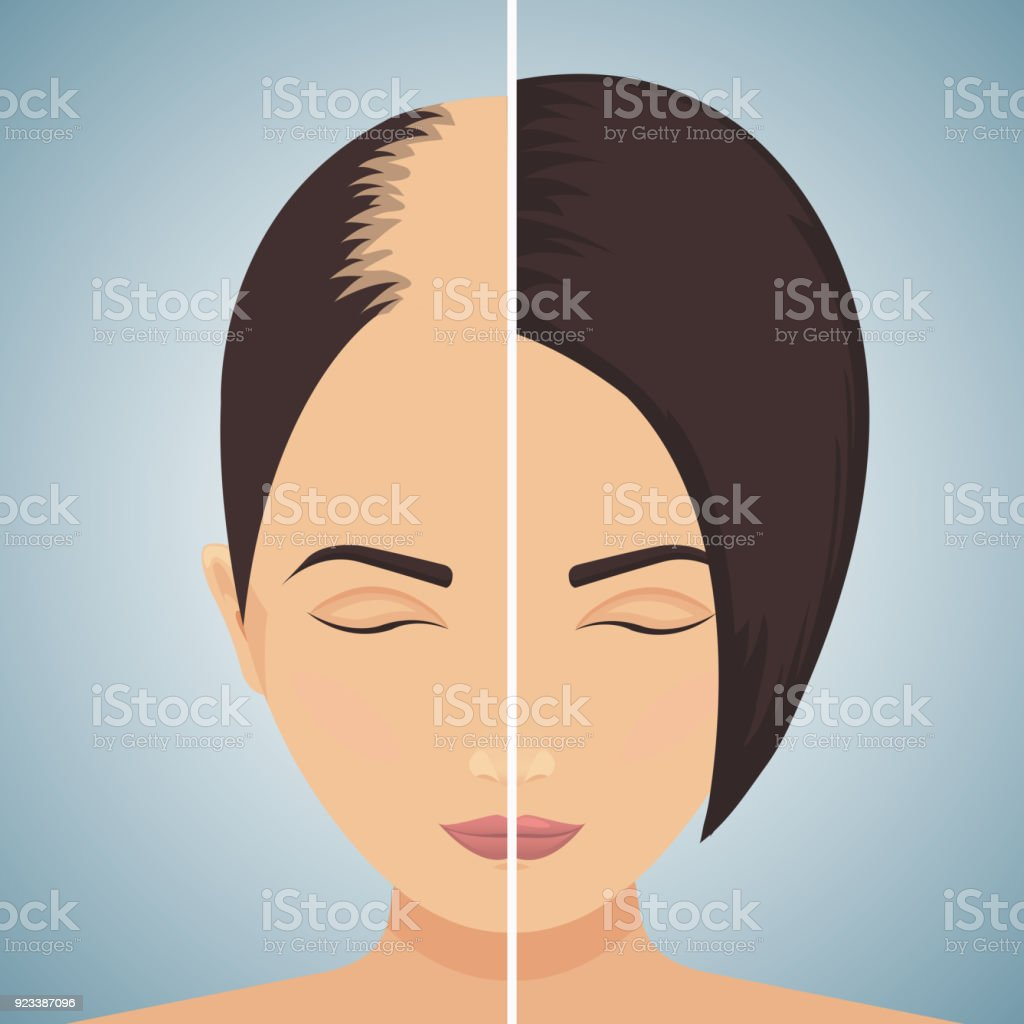 Hair loss in women - before after concept vector art illustration