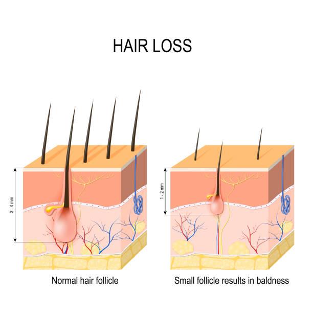 alopecia treatment diagram royalty free alopecia areata clip art, vector images ... alopecia skin diagram