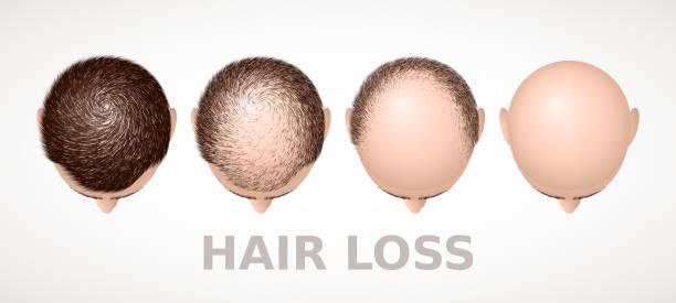 stockillustraties, clipart, cartoons en iconen met haaruitval. set van vier stadia van alopecia - kaal geschoren hoofd