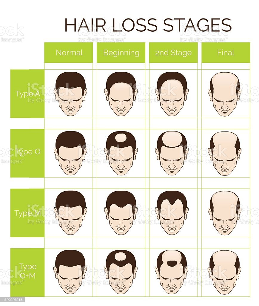 Hair loss stages and types for men vector art illustration