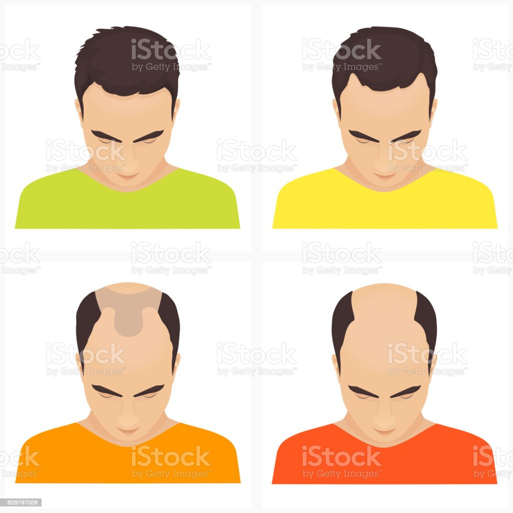 Hair loss stages in men vector art illustration